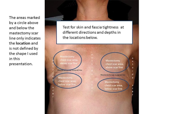Mastectomy Assessment