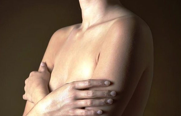 Radial Scars and Breast Cancer NEJM