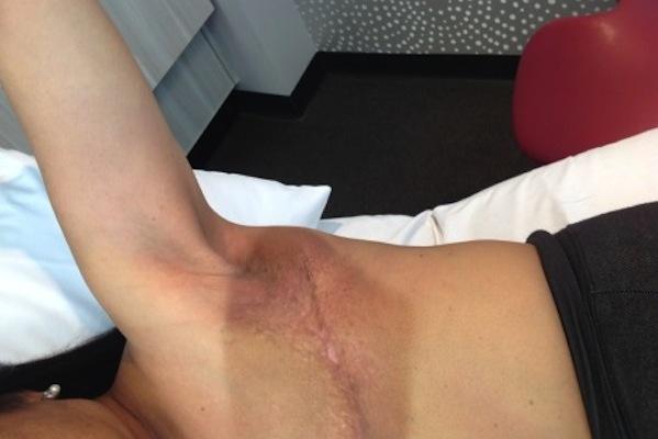 Mastectomy & Cording